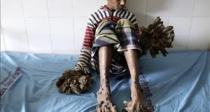 """Un hospital de Bangladesh se prepara para operar al """"hombre árbol"""" Abul Bajandar, un paciente diagnosticado con epidermodisplasia verruciforme, recibe atención médica en Dacca (Bangladesh) hoy, 1 de febrero de 2016. Abul sufre de esta enfermedad desde los 4 años."""